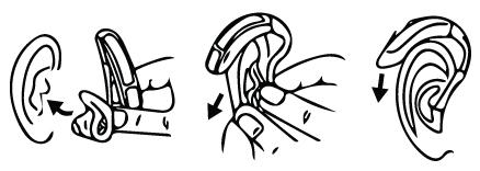 earmold instructions