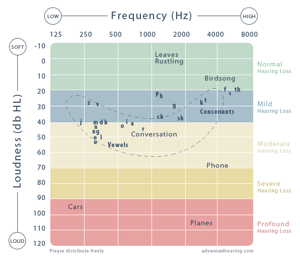 Audiogram Hearing Test Graph
