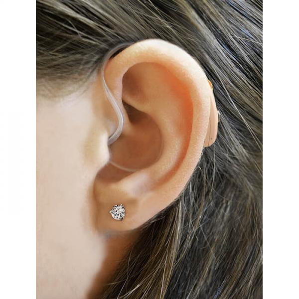 HCRD on ear
