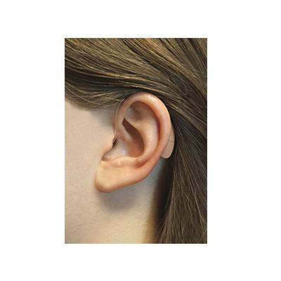 Coping with Hearing Loss Caused by Ménière's Disease