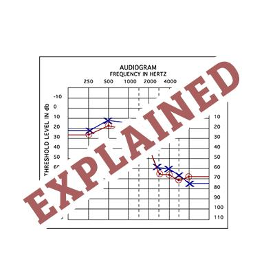 The Audiogram Explained